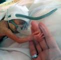 英早产16周女婴体重1斤顽强存活