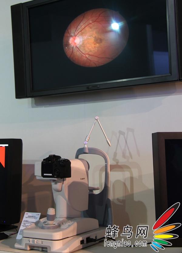 数码眼底照相机CR 2 EOS在医疗界行动 佳能expo医疗中心展区套图