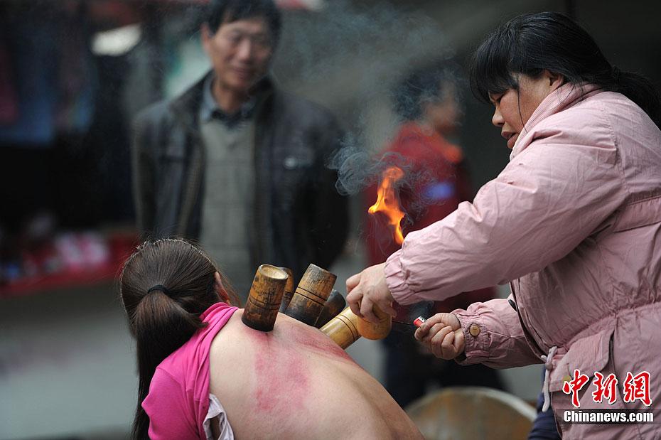 老街上一女生正温暖原始的拔方法医生给病人治笑容火罐图片使用图片